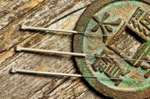 oviedo winter springs acupuncture needles